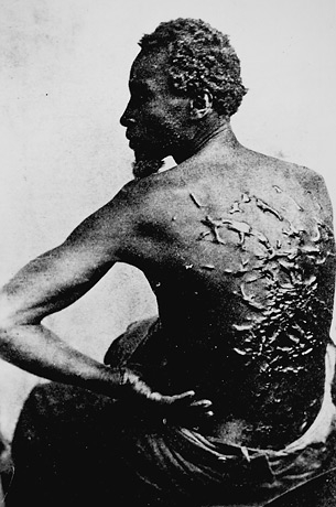 slavery-black-slaves-back-littered-with-scars-from-whipping[1]